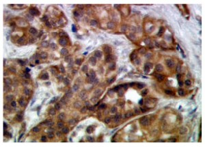 Immunocytochemistry-image-a-300x215